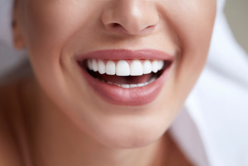 Teeth after Porcelain Veneer