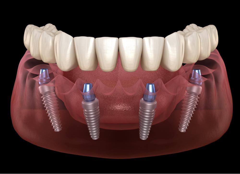 Dental implants treatment