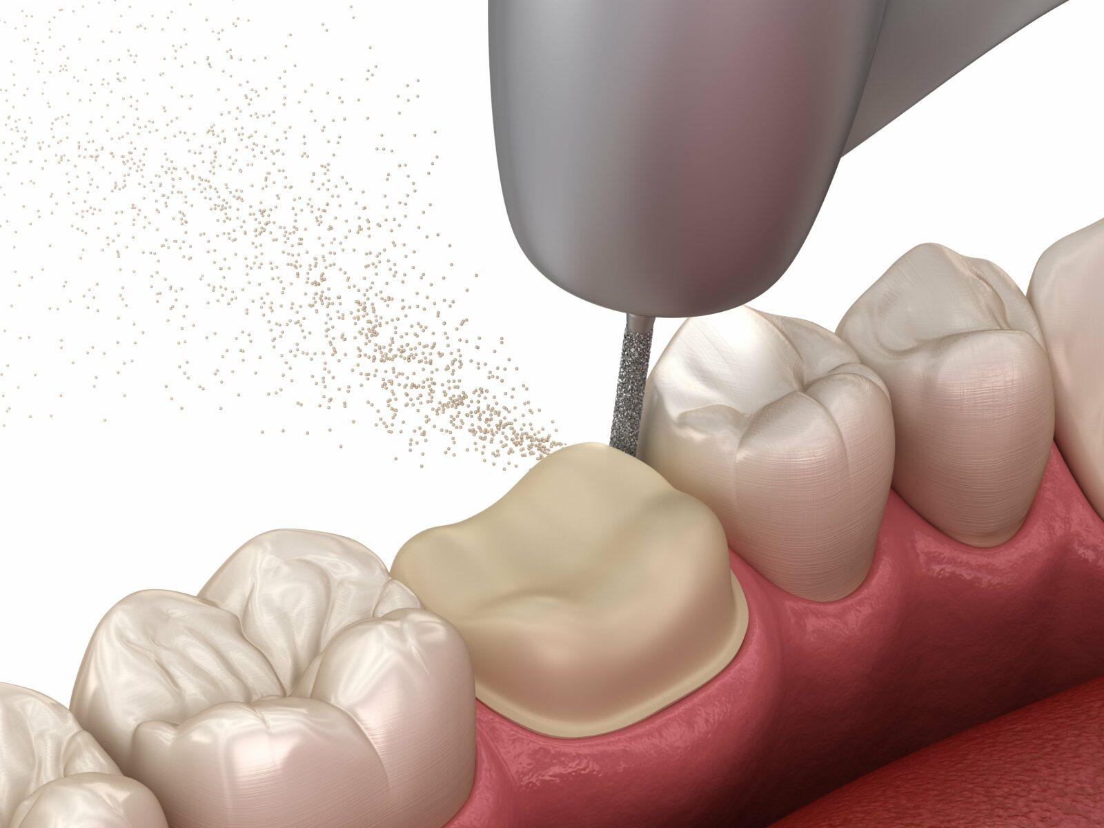 dental crown preparation