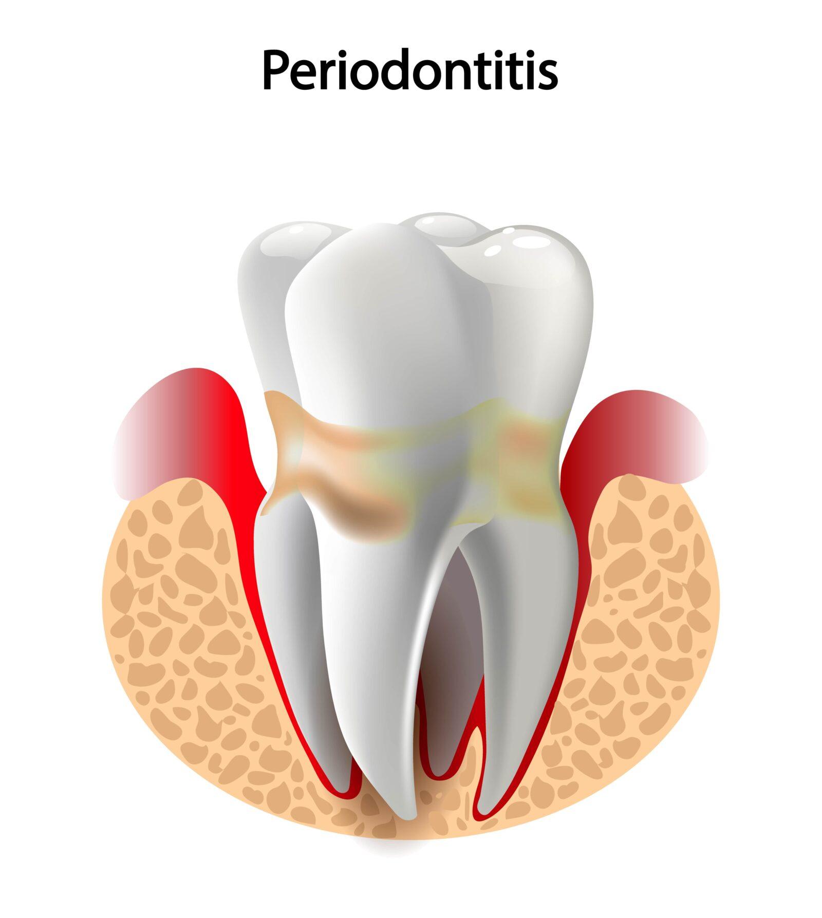 periodontal pockets
