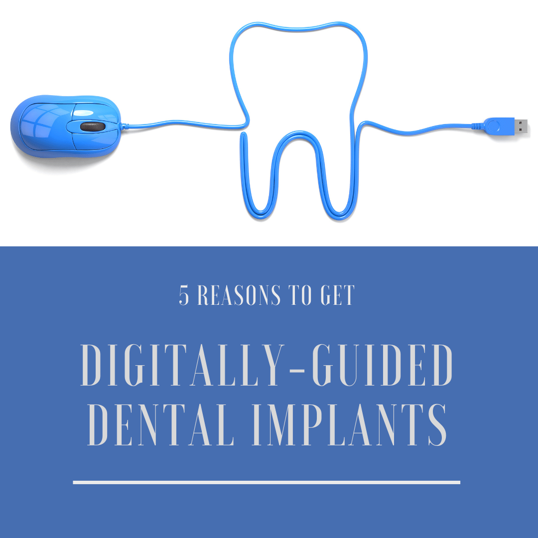 5 Reasons to Get Digitally Guided Dental Implants