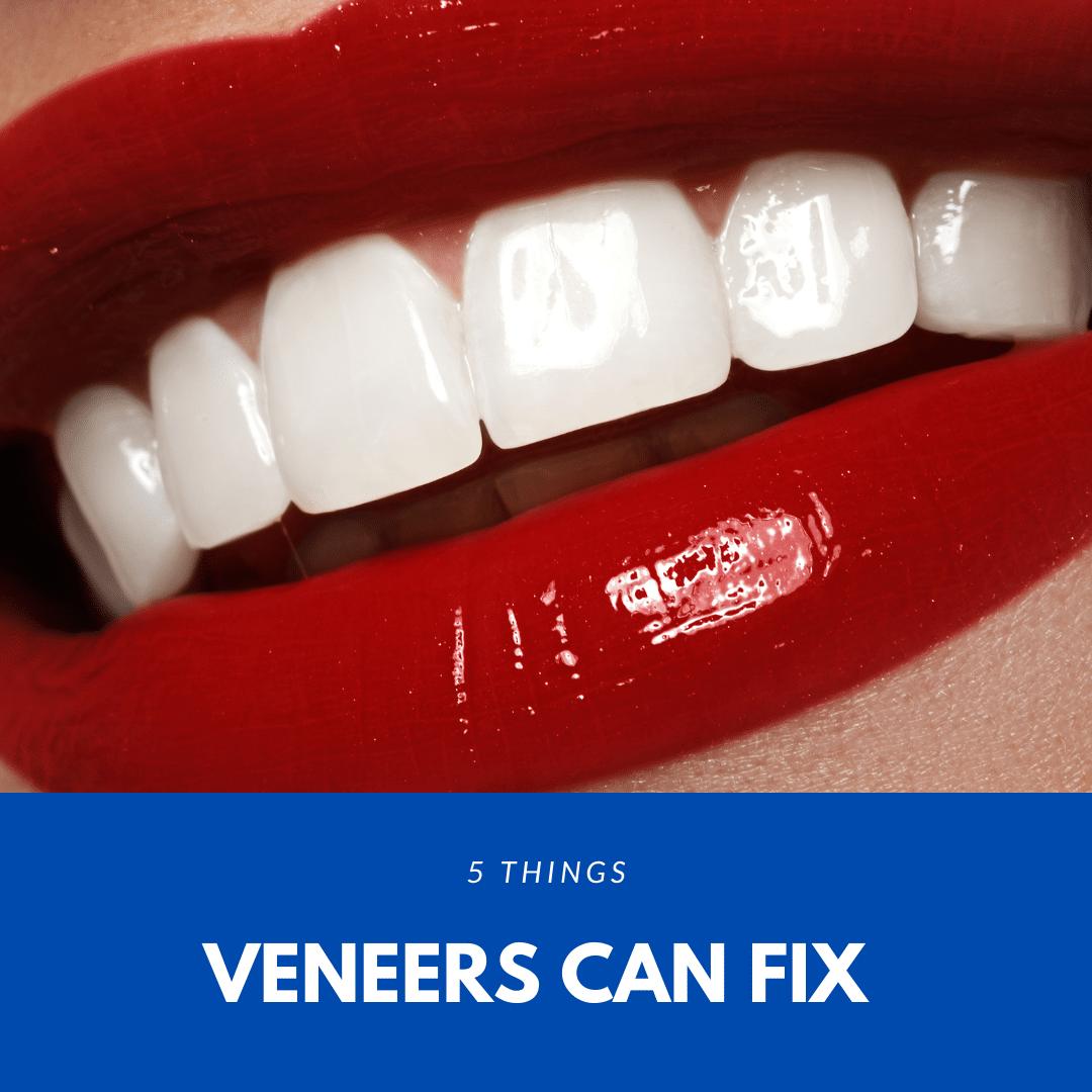 5 things veneers can fix