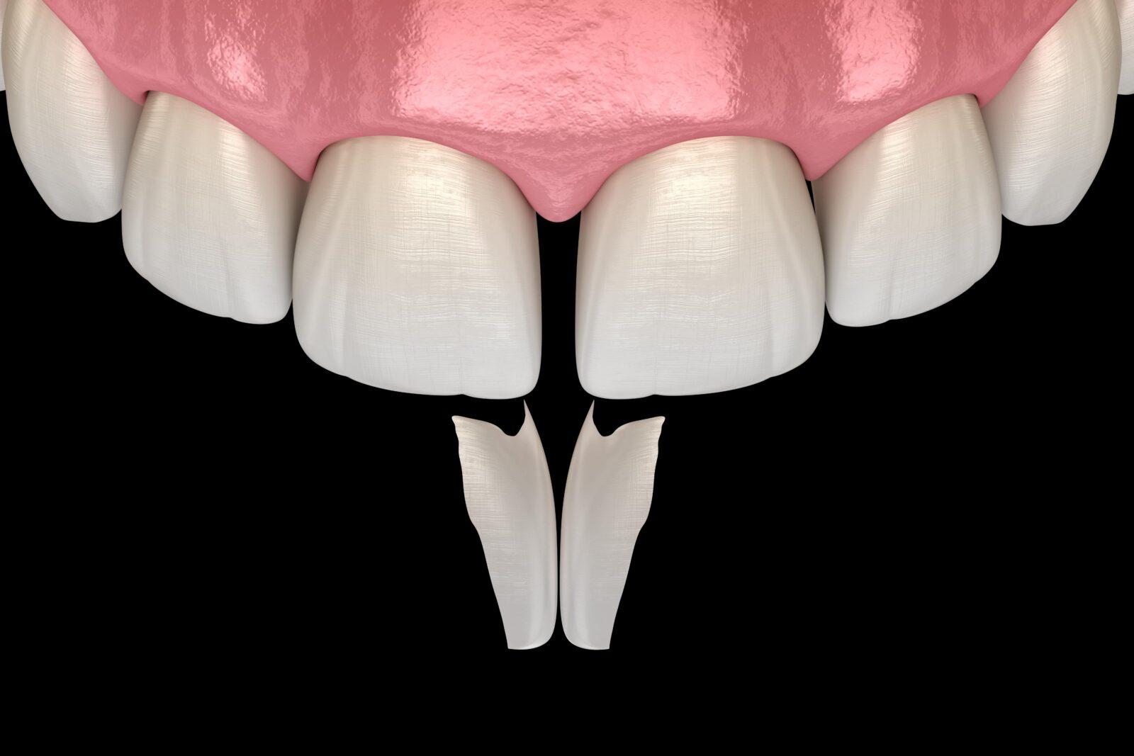 veneers removing gap between teeth