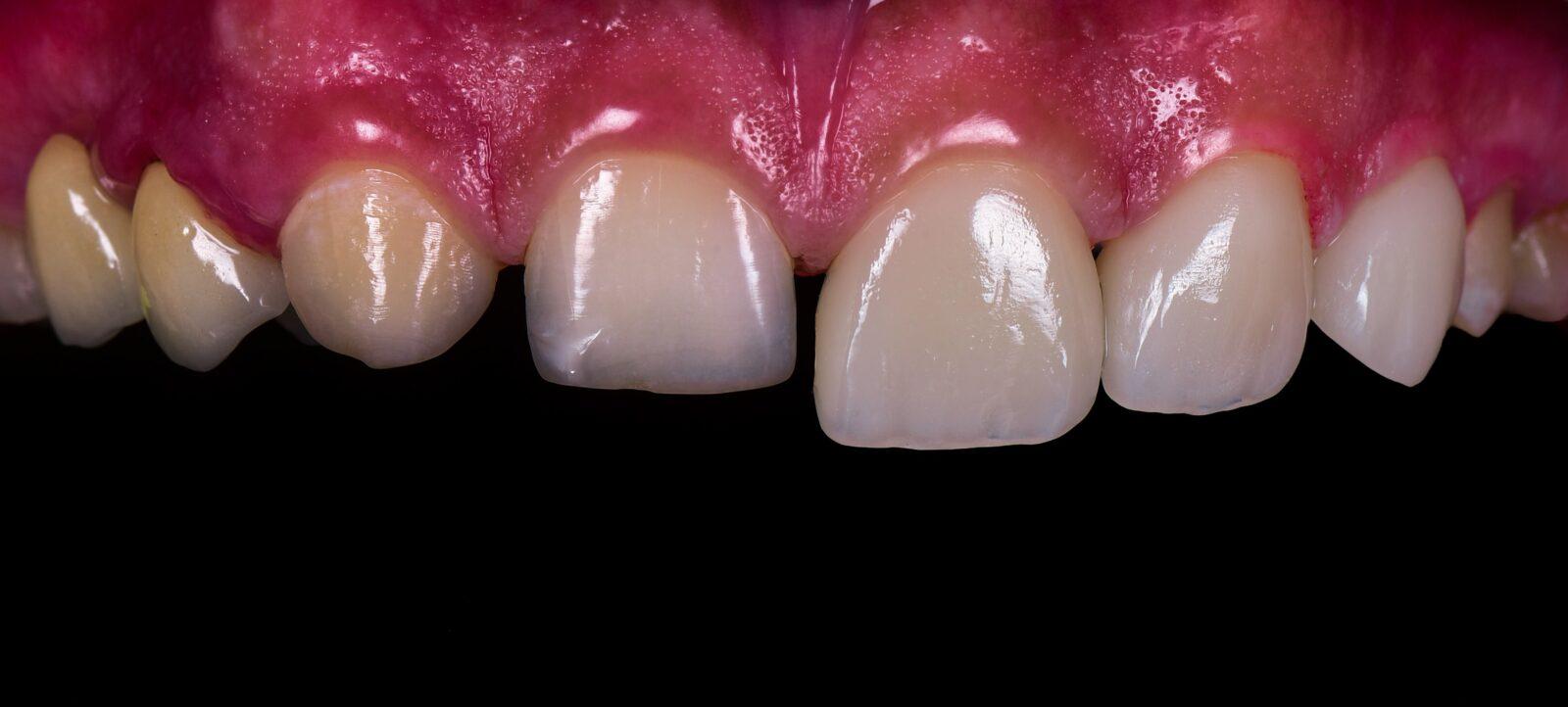 teeth before and after veneers